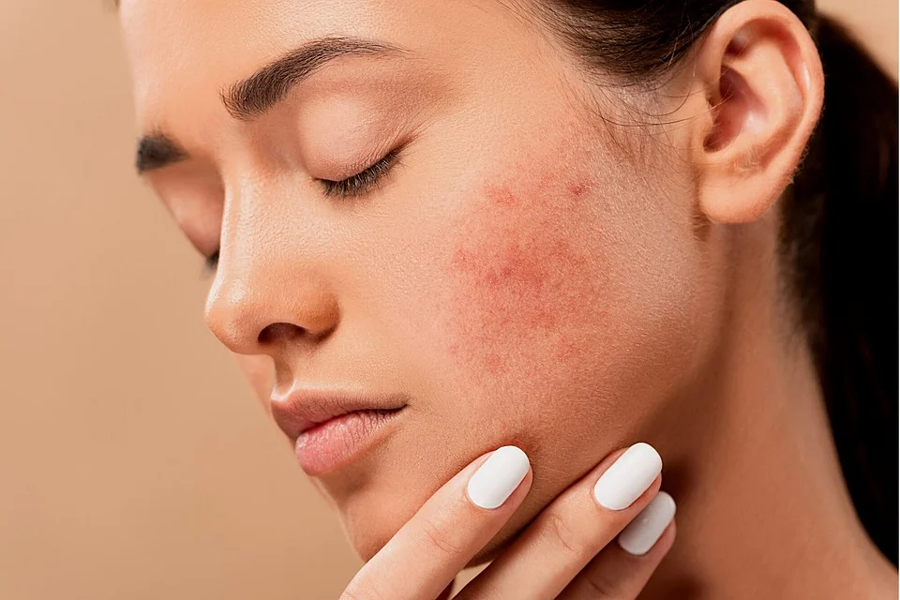 CBD and skincare may help with acne